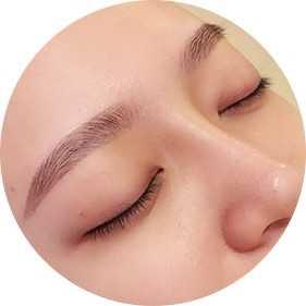 自体软骨隆鼻之后一般要恢复多久 全自体软骨隆鼻