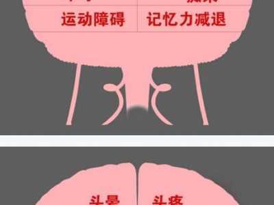 脑瘤、小中风、症状混淆、头疼、头晕 北京卫视养生堂早上起床头疼