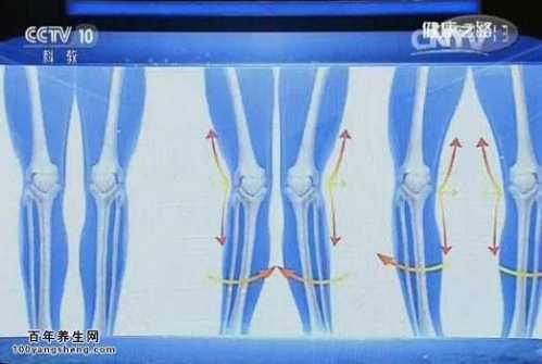 膝关节软骨损伤 养生堂关节积液