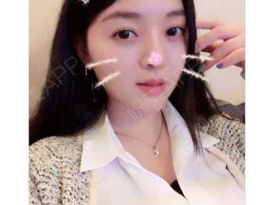 武汉五洲整形美容医院 假体隆鼻整型术