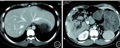 成人多脾综合征2例 脾-肝综合征