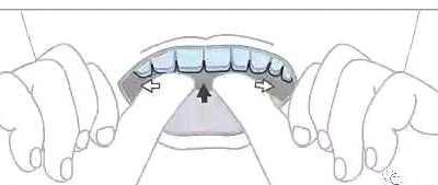 图片解说戴牙套过程 牙套图片