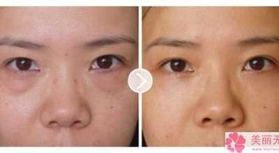 眼袋一般怎幺消除 眼袋治疗