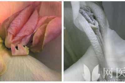 女人生殖器真人图片大放送 女人的生殅器图片