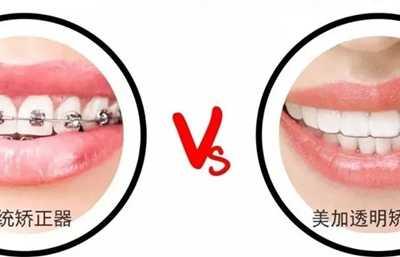 一分钟了解透明牙套的隐形矫正原理 牙套矫正原理